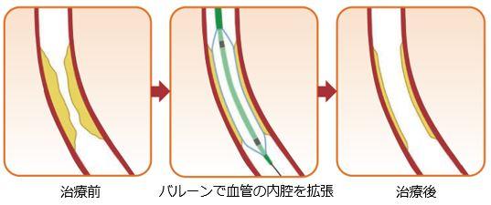 皮 留置 術 経 冠動脈 的 ステント